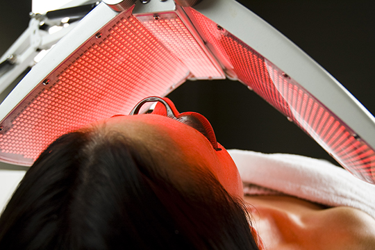 Facial treatments IPL photorejuvenation